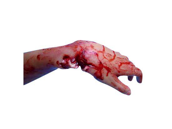 Simulation de fracture ouverte du poignet