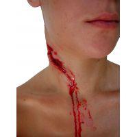 Plaie hémorragique du cou